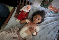 Four-year-old Palestinian girl Shayma Al-Masri, who hospital officials said was wounded in an Israeli air strike that killed her mother and two of her siblings